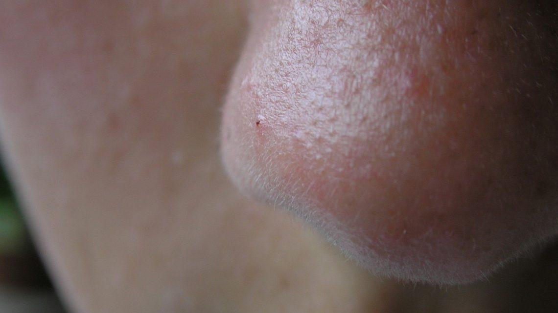Korekcja nosa – jak się przygotować?